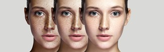 Domowe sposoby na przebarwienia na twarzy. Jak rozjaśnić ślady po trądziku i opalaniu?